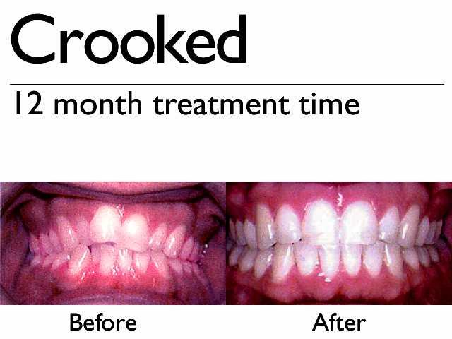 Invisalign Q1 Dental Care
