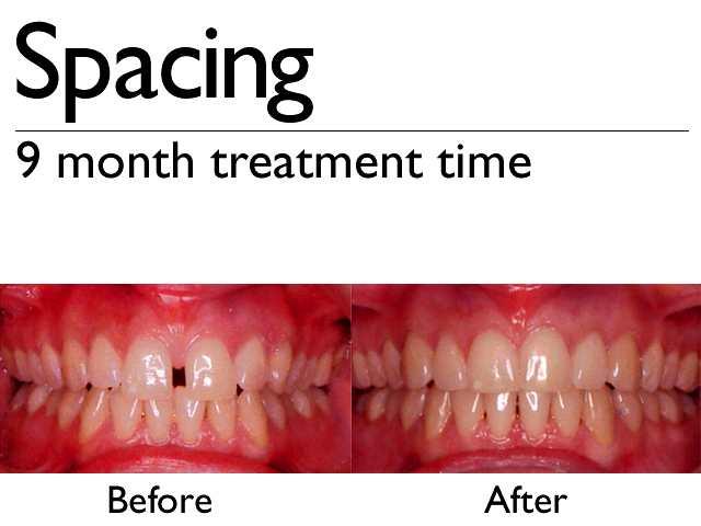 Invisalign | Q1 Dental Care