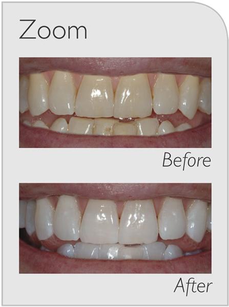 Zoom Whitening Q1 Dental Care